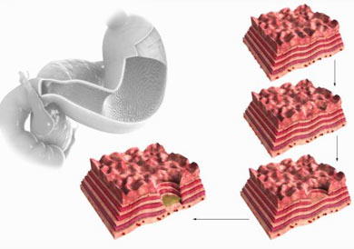 Как проявляется язва желудка
