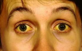 Зафиксированы новые случаи заболевания желтухой