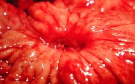 К чему может привести язва желудка?