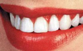 Изжога ухудшает состояние зубной эмали