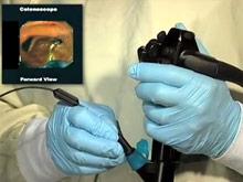 Эффективность колоноскопии удалось повысить на 40% с новым прибором