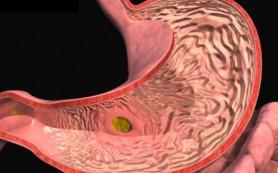 Найдена ахиллесова пята возбудителя язвенной болезни
