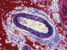 Атеросклероз вызывают нарушения бактериального баланса в кишечнике
