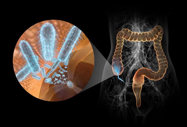 Состав бактерий кишечника влияет на воспаление и риск рака