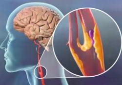 Лекарство от инсульта вылечит язву желудка и туберкулез
