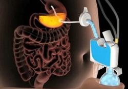 Желающим похудеть поможет метод принудительного откачивания пищи из желудка