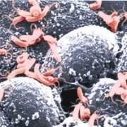 Ингибиторы протонной помпы при синдроме функциональной диспепсии