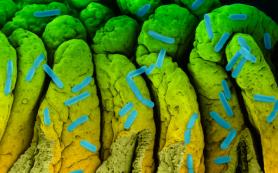 Как кишечные бактерии управляют уровнем холестерина