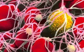 Стволовые клетки амниотической жидкости восстанавливают поврежденный кишечник