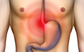 Медики обнаружили связь между ожирением и раком пищевода