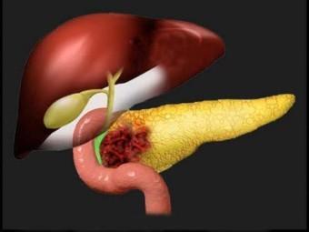 В США одобрили новое лекарство от рака поджелудочной железы