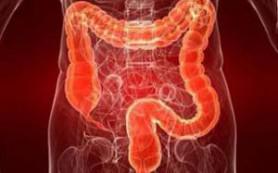 Выявлена связь между заболеванием кишечника и бесплодием