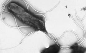 Ученые установили, как Helicobacter pylori выживает в слизистой желудка