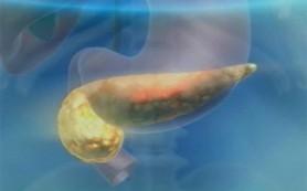 Рак поджелудочной железы можно выявить с помощью простого анализа
