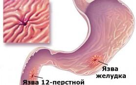 Основные принципы диетического питания при язве желудка