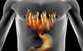 Жгучее чувство: как избавиться от изжоги