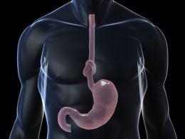 Центральное ожирение является самостоятельным фактором риска развития заболеваний пищевода, включая рак этого органа