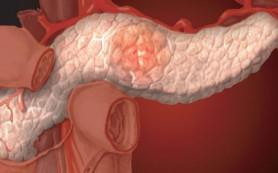 Острый панкреатит как самостоятельный фактор риска развития аденокарциномы поджелудочной железы