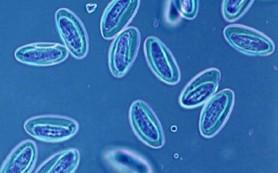 Как очиститься от гельминтов, глистов, паразитов и простейших микроорганизмов