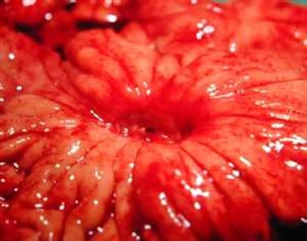 Диета при язве желудка: возьмите на заметку
