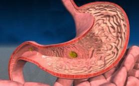 Гастрит с повышенной кислотностью: признаки, народное лечение