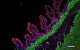 Из стволовых клеток человека вырастили работающую ткань кишечника