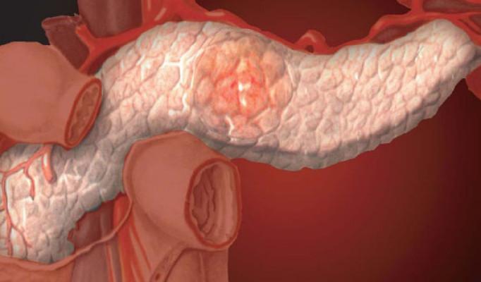 Диета при хроническом панкреатите: советы