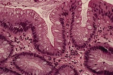 Рост человека – независимый фактор риска развития пищевода Барретта и эзофагеальной карциномы