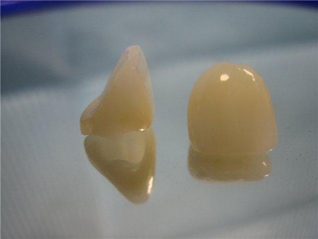 Металлокерамические коронки — спасение зубов