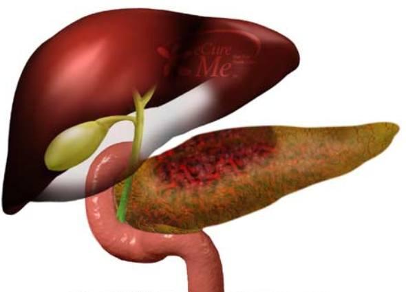 Рекомендованные продукты в питании при панкреатите