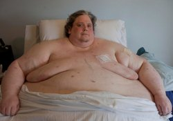 Операция по уменьшению желудка не спасла самого толстого человека планеты…