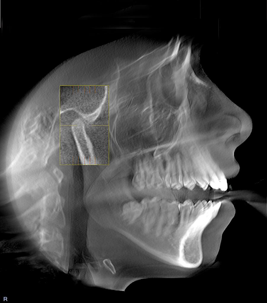 Диагностирование при помощи компьютерной томографии — непревзойденная точность