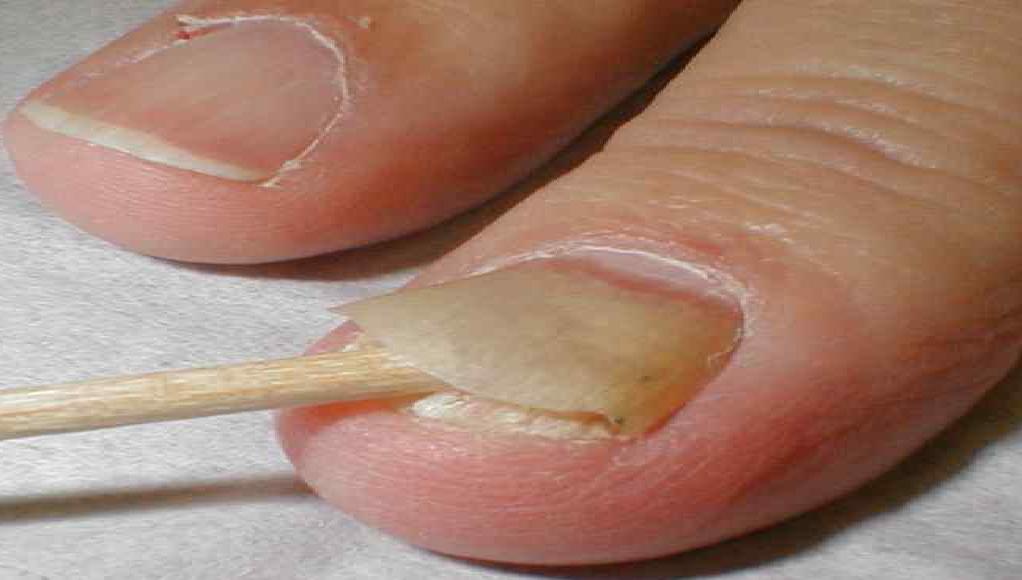 Грибок ногтей: причины появления, симптоматика, лечение
