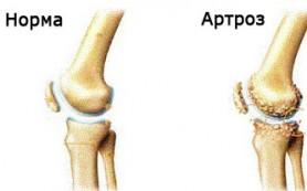 Основные причины артроза суставов и факторы риска
