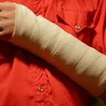 Переломы руки