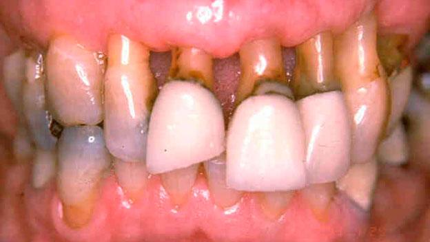 Распространенное заболевание в сфере стоматологии