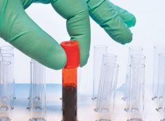Обострение псориаза провоцируют кишечные бактерии