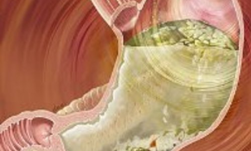 В США одобрен новый тест для диагностики гастропареза