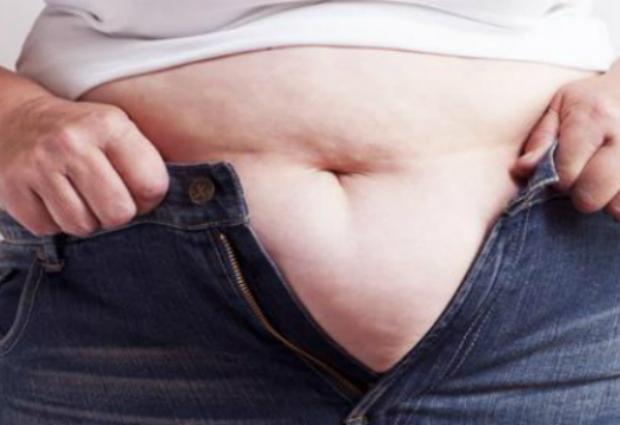 Названы главные причины ожирения