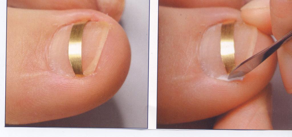 Онихокриптоз: лечим вросший ноготь