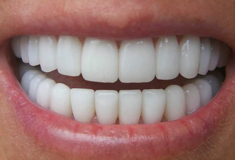 Установить протез на 1 зуб