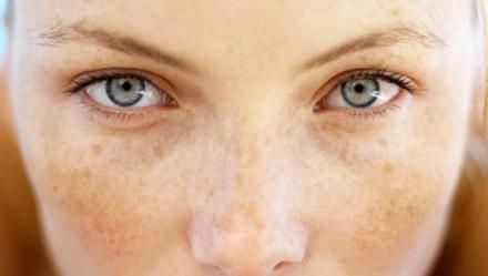 Пигментация кожи: из-за чего появляется и как с ней бороться?
