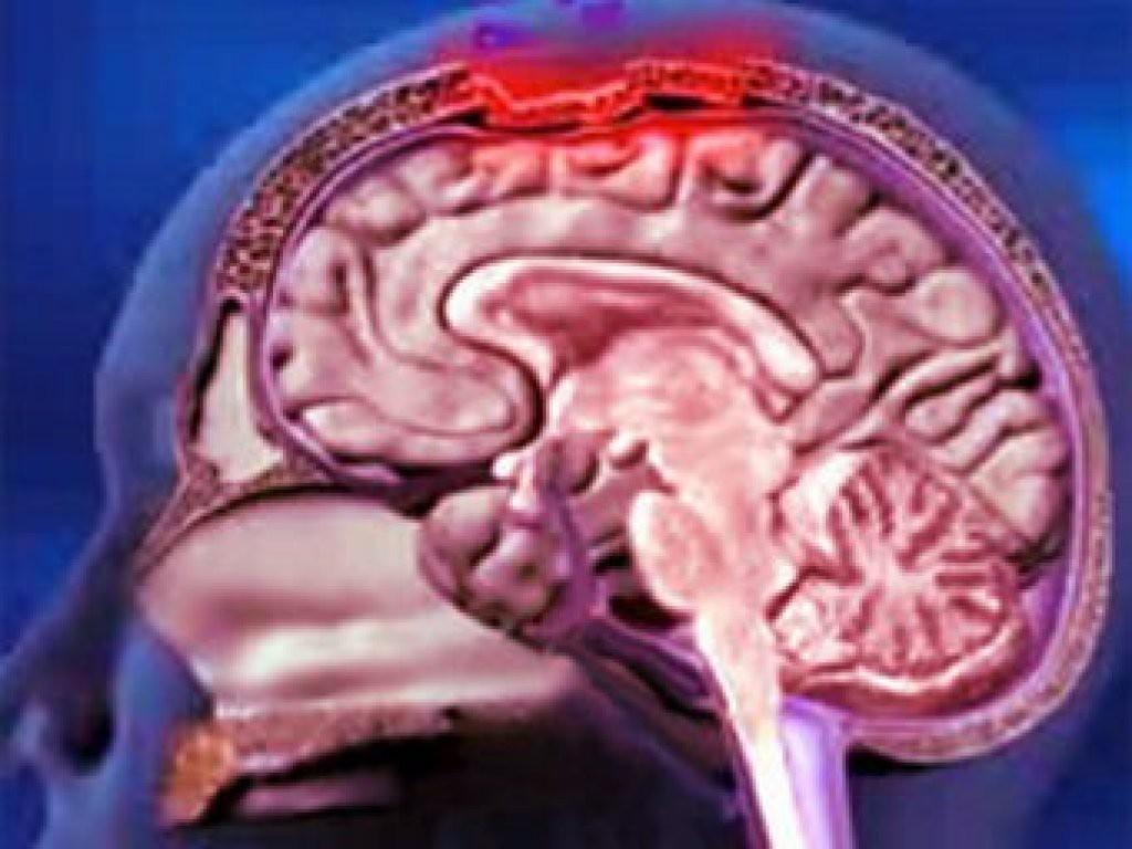 Менингит, симптомы и лечение