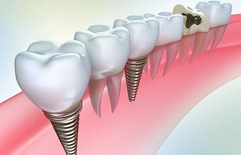 Импланты зубов можно установить с помощью МедБукинг