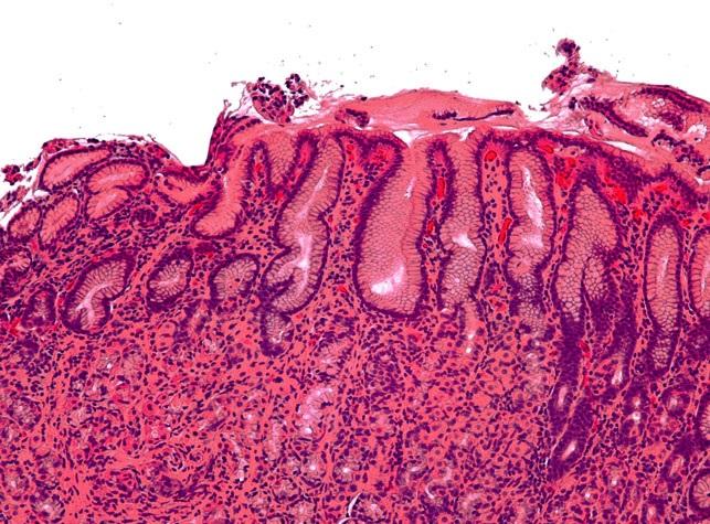 Гастрит и язва желудка возникают из-за бактерии, которой люди часто заражаются еще в детстве
