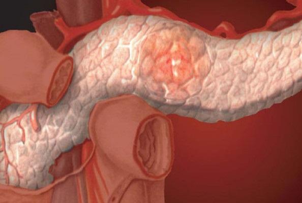 Панкреатит: что полезно и вредно для поджелудочной железы
