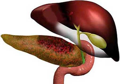 Народная медицина при панкреатите