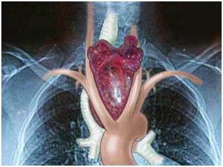Как распознать проблемы со щитовидной железой?