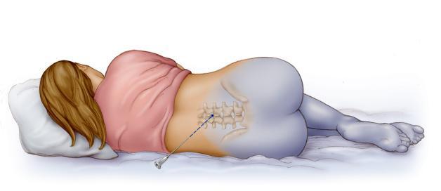 Эпидуральная анестезия и ее особенности