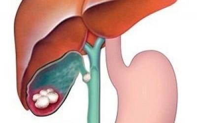 Возрастные заболевания печени и желчного пузыря